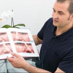 Ästhetische Nasenkorrektur